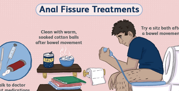 Anal Fissure Treatment, Symptoms, Natural Remedies